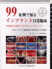 99症例で知るインプラント日常臨床(クインテッセンス出版)